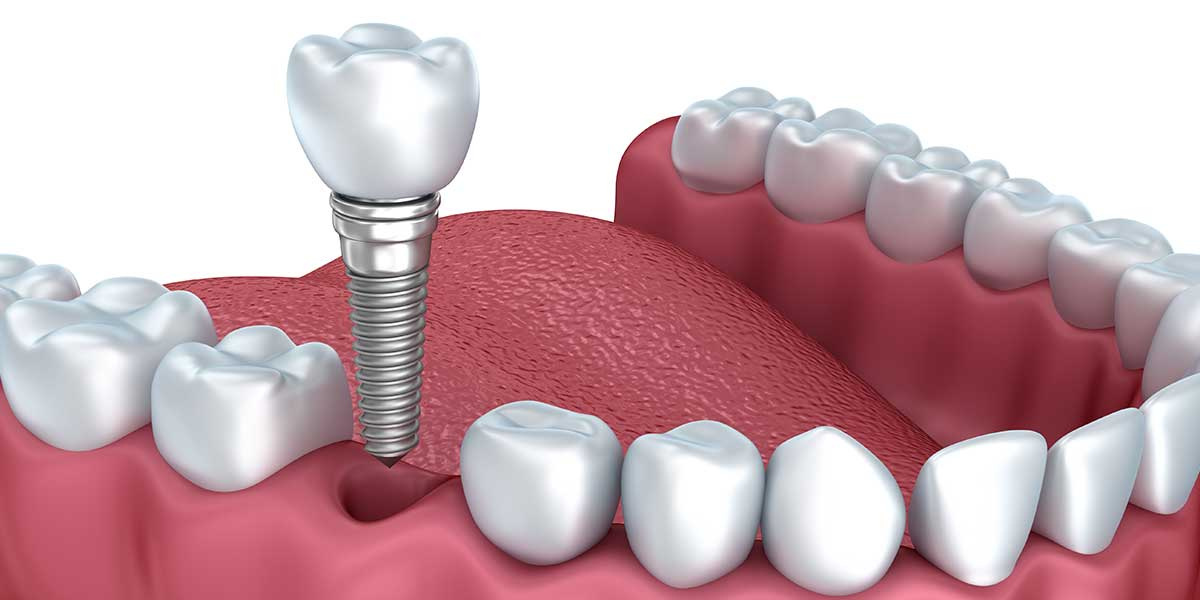 Dental Implants – A Permanent Solution to Missing Teeth