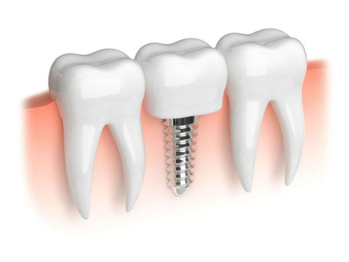 What Factors would influence the Cost of Dental Implant Procedure